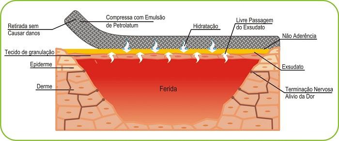 Imagem Curatec Compressa com Emulsão de Petrolatum